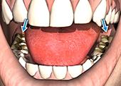 Детска устна хигиена