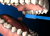 Почистване на детски зъби