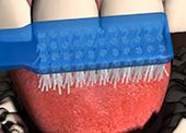 Кариес на млечен зъб лечение