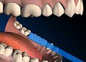 Детски стоматолог