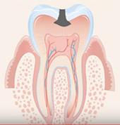 Разрастване на кариеса в дентина
