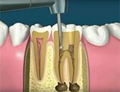 Разкриване на нерва през коронката на зъба