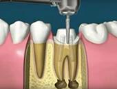 Изпиляване на зъба и подготовка за коронка