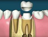Поставяне на коронка за запазване на зъба