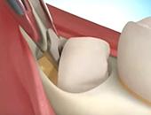 операция на врастнал зъб