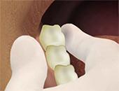 Изваждане на зъб